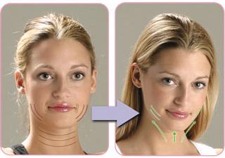 eliminare doppio mento con la chirurgia estetica