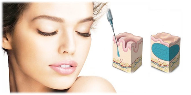 acido-ialuronico-medicina-estetica-antirughe